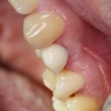 Laikinas vainikėlis formuoja dantenas
