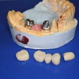 Laboratorijoje gaminami dantų vainikėliai