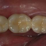 krūminiai dantys suprotezuoti (vaizdas burnoje)